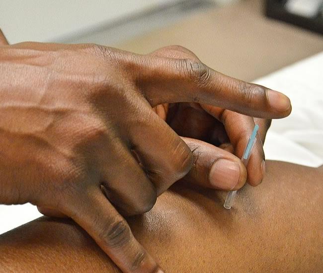 Akupunktur virkning