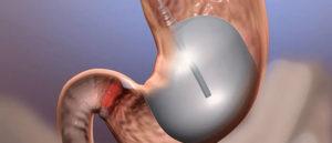 Vægttab med en maveballon - hvordan?